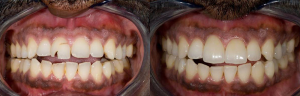 Before and after dental implant surgery in Orange County, CA