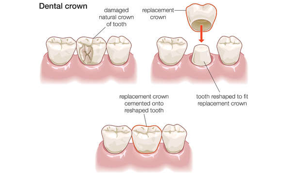 Dental Crowns And Caps Porcelain Crowns Tooth Crowns