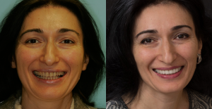 Before and after cosmetic dentistry in Irvine, CA