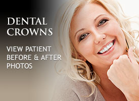 gallery-dental-crowns