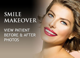 gallery-smile-makeover