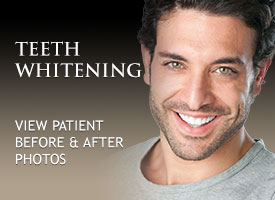 Professional Teeth Whitening San Pedro CA. Teeth Whitening San Pedro. Cosmetic Teeth Whitening in San Pedro California.