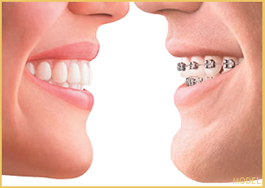 Invisalign compared to braces in Newport Beach