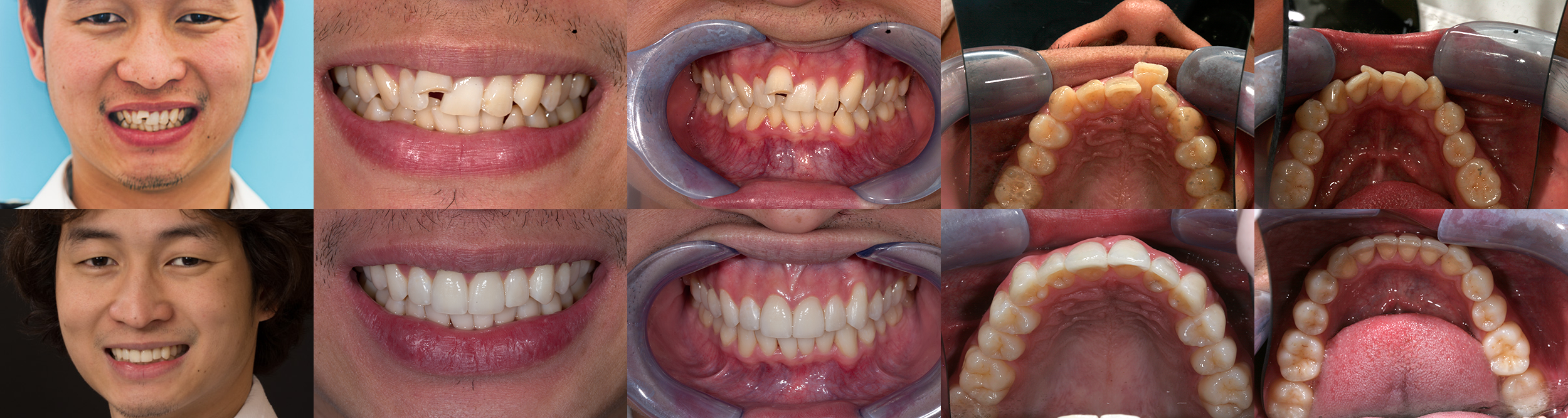 Spring retainer before and after
