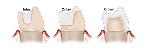 Dental Onlays, Partial Crowns & Indirect Fillings | Dentist in ...