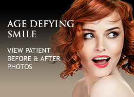 Veneers Irvine. Porcelain Veneers Irvine. Dental Veneers Irvine California.