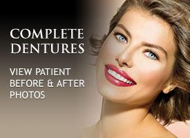 gallery-complete-dentures