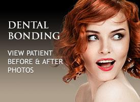 gallery-dental-bonding