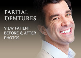 gallery-partial-dentures