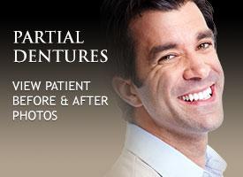 gallery-partial-dentures