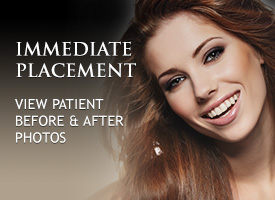 Dental Implants Balboa Island CA. Implants Balboa Island. Teeth Replacements in Balboa Island California.