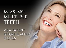 tile-missing-multiple-teeth