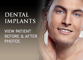 tile-dental-implants