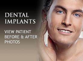 tile-dental-implants
