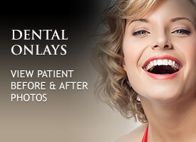 tiles-dental-onlays