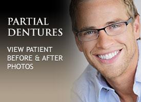 tiles-partial-dentures