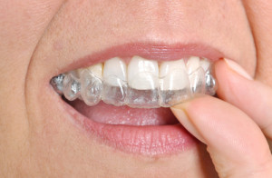Woman putting on her invisible braces