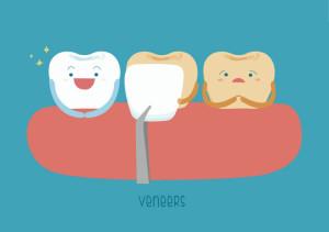 Cartoon drawing of three teeth, one of which is wearing a veneer