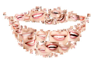 full mouth rehabilitation for oral health