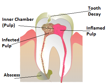 abscess tooth illustration